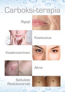 Carboksi terapia ihohoidot