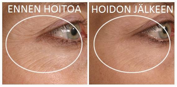 Kasvohoito silmänympärysalueelle