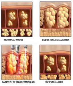 RF kiinteyttävä vartalohoito