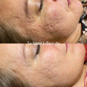 Laserhoito kasvoille L-Beauty