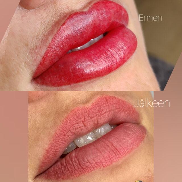 Huulien kestopigmentointi Helsinki L-Beauty heti toimenpiteen jälkeen ja parantuneet huulet